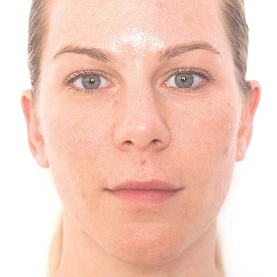 Miracle10 Skin Care Before & After Photo