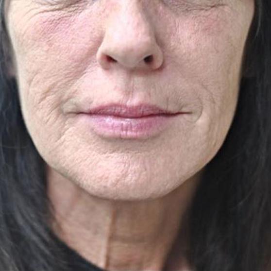 Dermal Fillers Before & After Photo