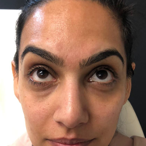 Redensity II Under Eye Treatment Before & After Photo