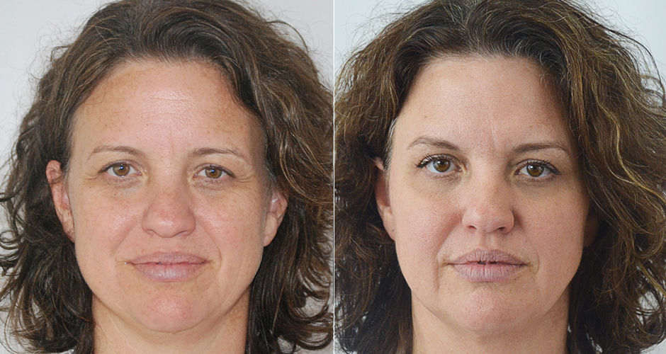 Eterna Face Before and After