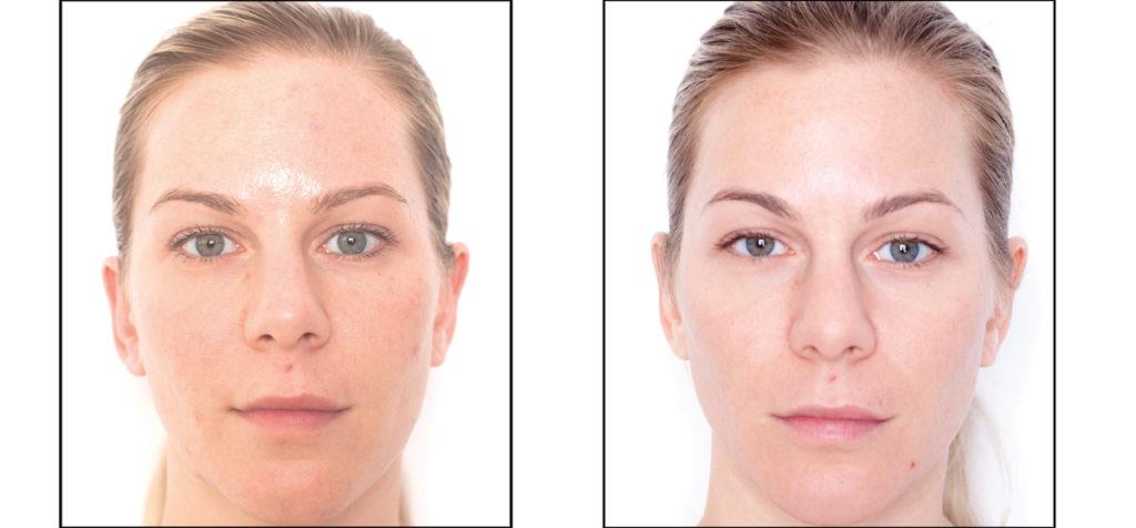 Miracle 10 Facial Peel Treatment