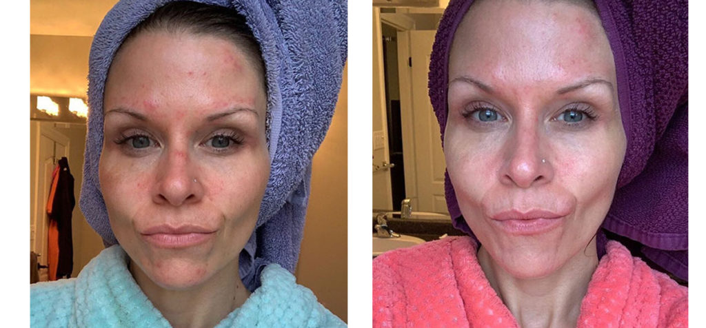 Miracle 10 Skincare Before and After